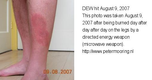 dewhit_leg_20070809t.jpg
